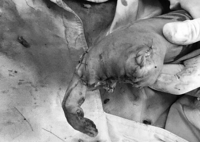 Người phụ nữ đi mua nhà bị lựu đạn nổ nát cả bàn tay-1