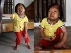 Cô gái 28 tuổi vẫn mang hình hài của đứa trẻ lên 3, lẫm chẫm tập đi từng bước