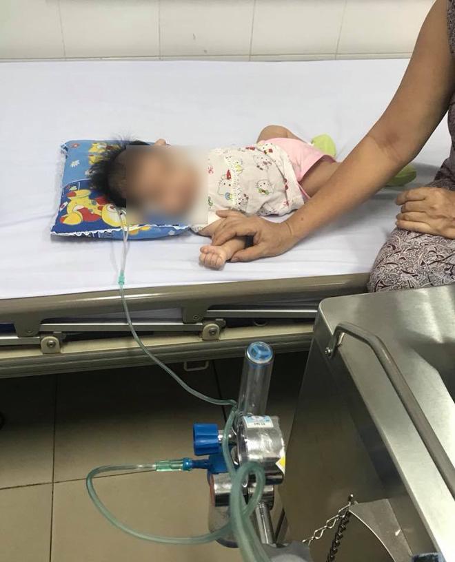 Rơ lưỡi cho con sau khi bú, hành động tai hại của mẹ khiến bé 2 tháng tuổi nhập viện-1