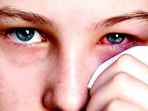Bệnh đau mắt đỏ - một trong những bệnh cần tránh trong mùa hè