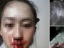 Con gái đau đớn 'tố' bị cha ruột đánh gãy xương mũi, máu chảy be bét cùng chuỗi ngày sống trong bạo hành