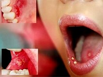 Đề cao cảnh giác với ung thư và bệnh tim nếu răng miệng xuất hiện những dấu hiệu này
