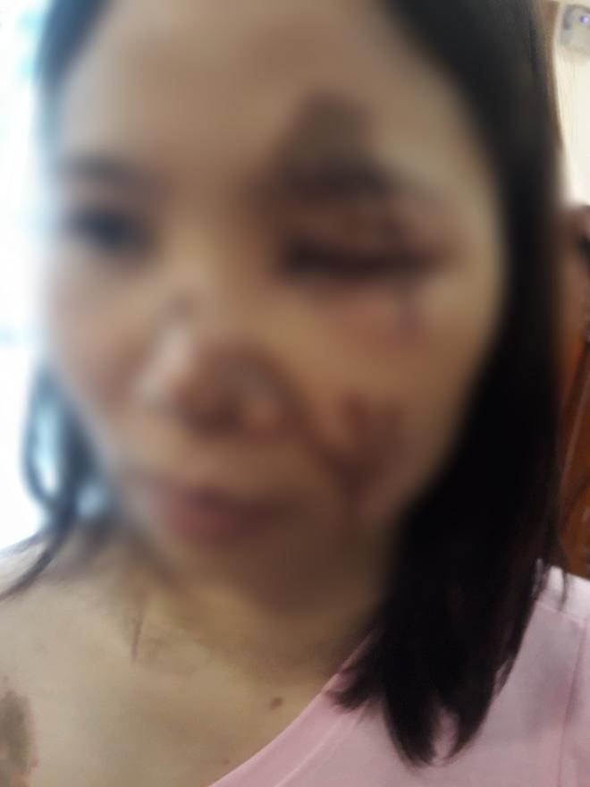 Nữ chủ tiệm thuốc tố bị bác sỹ tạt axit đến bỏng nặng khi gạ gẫm không thành-1