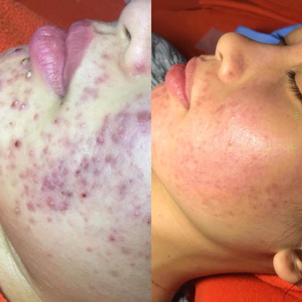 Dùng dầu tẩy trang sai cách, cô gái trẻ đắng lòng vì làn da bị tàn phá nặng nề bởi mụn-6