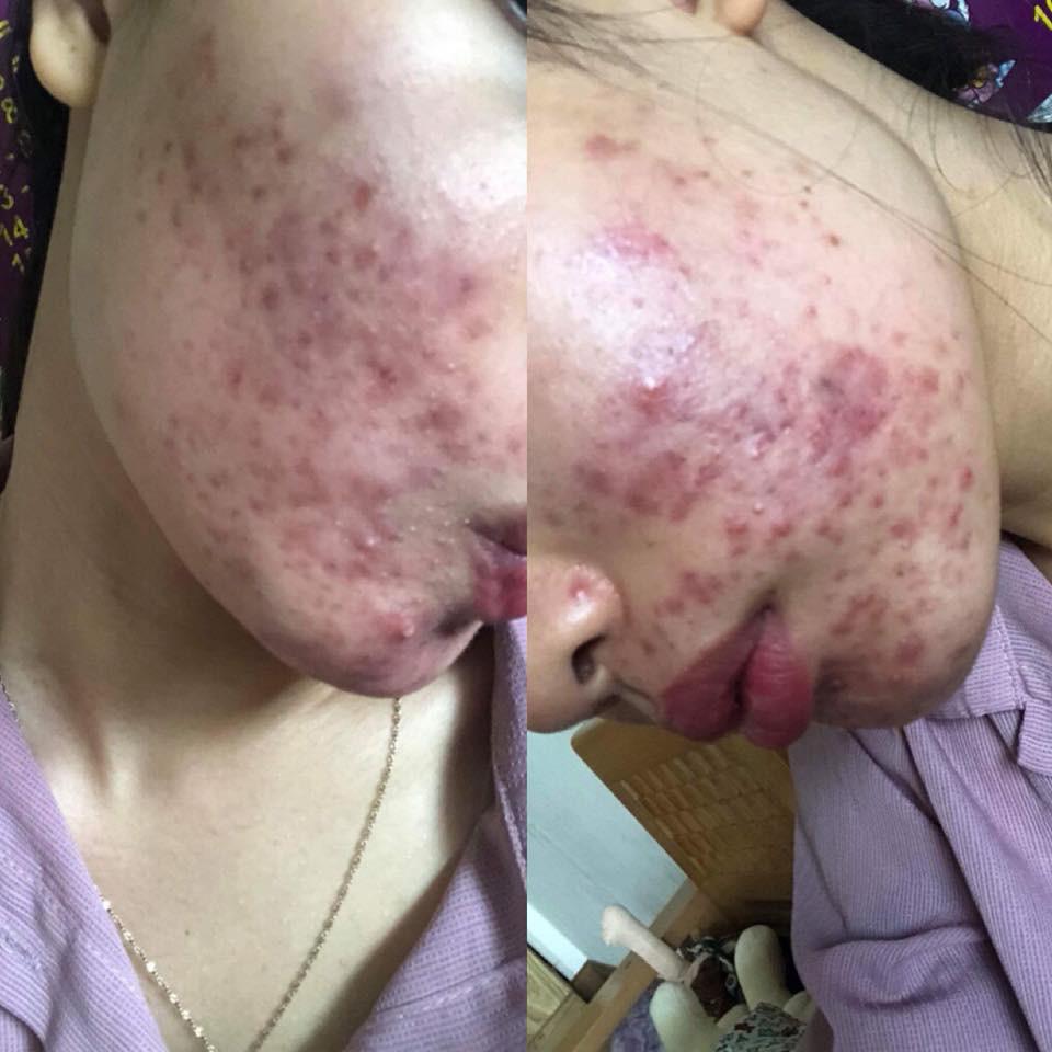 Dùng dầu tẩy trang sai cách, cô gái trẻ đắng lòng vì làn da bị tàn phá nặng nề bởi mụn-5