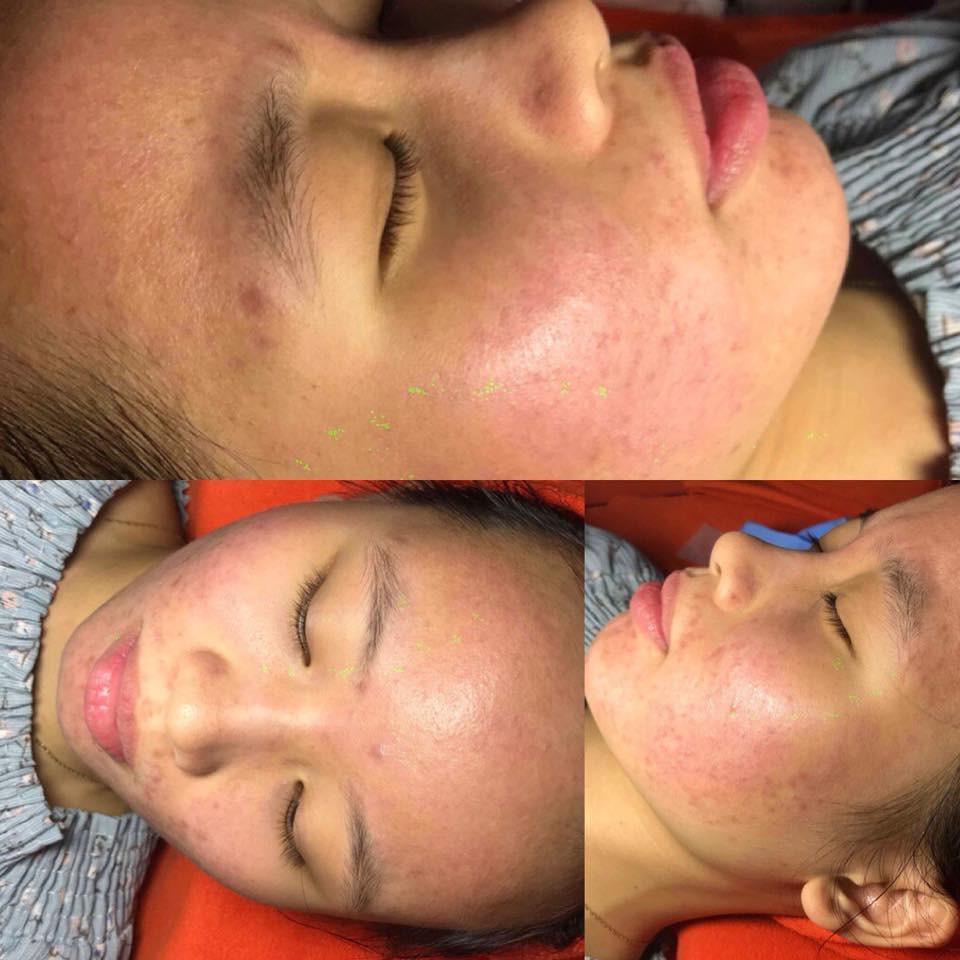Dùng dầu tẩy trang sai cách, cô gái trẻ đắng lòng vì làn da bị tàn phá nặng nề bởi mụn-7