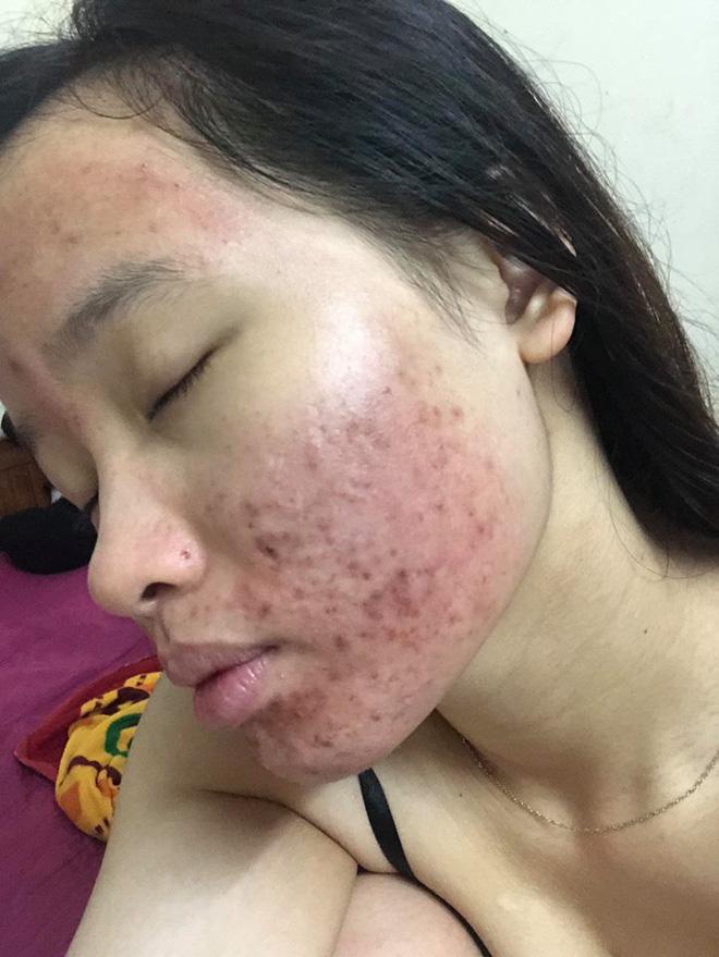 Dùng dầu tẩy trang sai cách, cô gái trẻ đắng lòng vì làn da bị tàn phá nặng nề bởi mụn-4