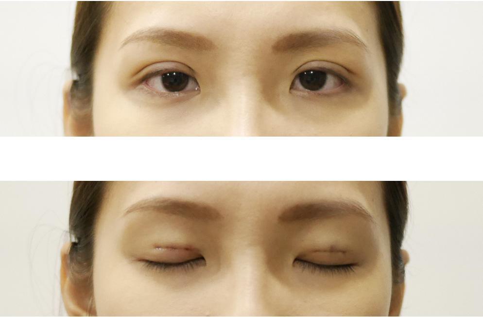 Không phải ai cũng biết nhấn mí mắt có hại không và cần lưu ý gì-2