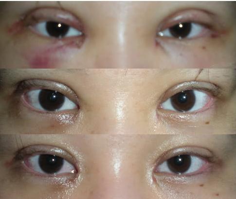Không phải ai cũng biết nhấn mí mắt có hại không và cần lưu ý gì-5
