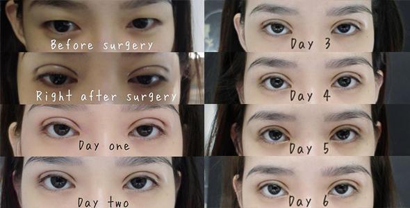 Không phải ai cũng biết nhấn mí mắt có hại không và cần lưu ý gì-3