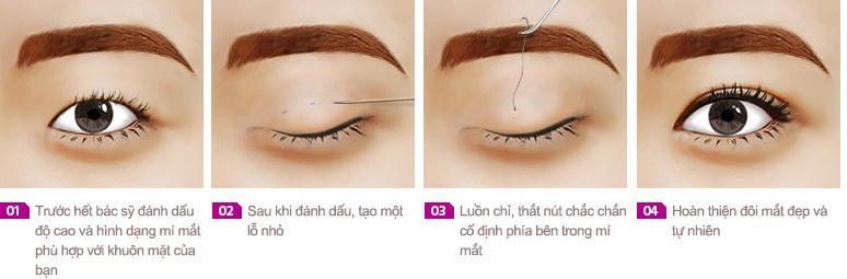 Không phải ai cũng biết nhấn mí mắt có hại không và cần lưu ý gì-1