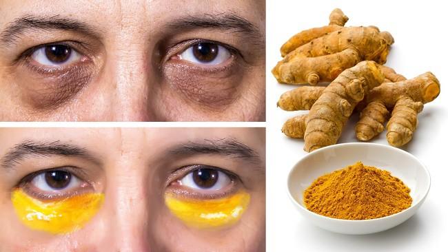 8 loại mặt nạ loại bỏ quầng thâm mắt hiệu quả, giúp bạn luôn xinh đẹp rạng ngời-4