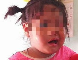 Cô giáo bị tố đánh trẻ liệt dây thần kinh, méo mồm tạm nghỉ việc-1