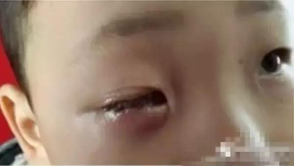 Bé 8 tuổi bị mù 1 mắt vĩnh viễn chỉ vì chiếc túi hút ẩm nhỏ xíu-3