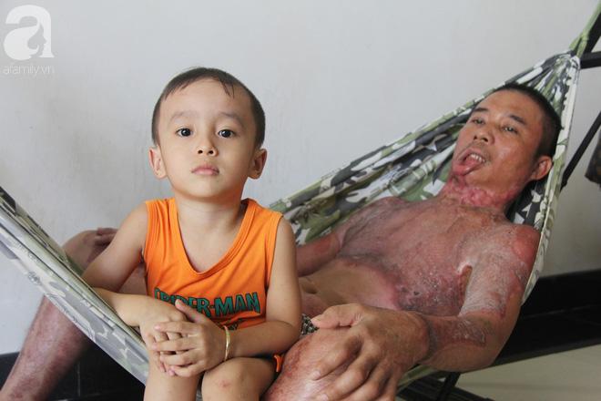Bị điện giật cháy người không có tiền chạy chữa, bố xót xa nhìn con trai 4 tuổi không nhận ra mình-7