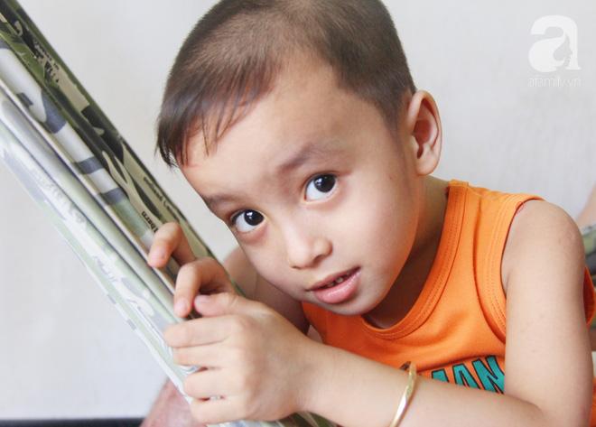 Bị điện giật cháy người không có tiền chạy chữa, bố xót xa nhìn con trai 4 tuổi không nhận ra mình-2
