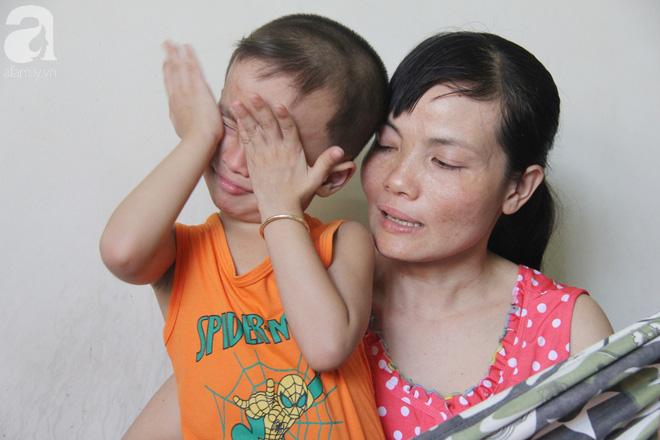 Bị điện giật cháy người không có tiền chạy chữa, bố xót xa nhìn con trai 4 tuổi không nhận ra mình-4
