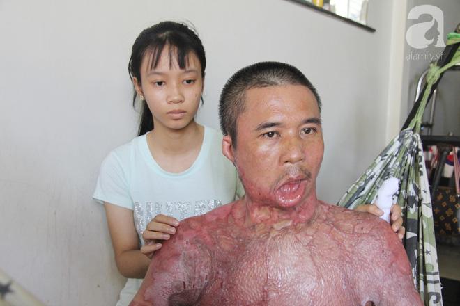 Bị điện giật cháy người không có tiền chạy chữa, bố xót xa nhìn con trai 4 tuổi không nhận ra mình-9