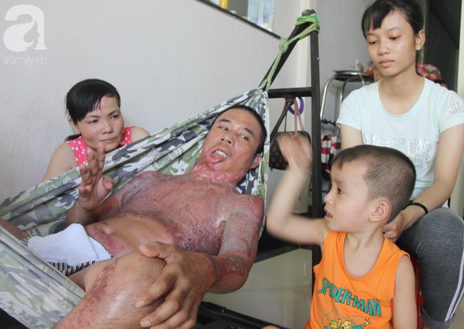 Bị điện giật cháy người không có tiền chạy chữa, bố xót xa nhìn con trai 4 tuổi không nhận ra mình-14