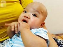 Tiếng khóc xé lòng của bé trai hơn 5 tháng tuổi mắc bệnh não úng thủy