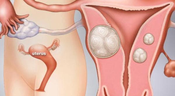 Thiếu nữ mọc 36 khối u xơ tử cung vì ăn thịt: 7 thực phẩm phụ nữ phải tránh-2