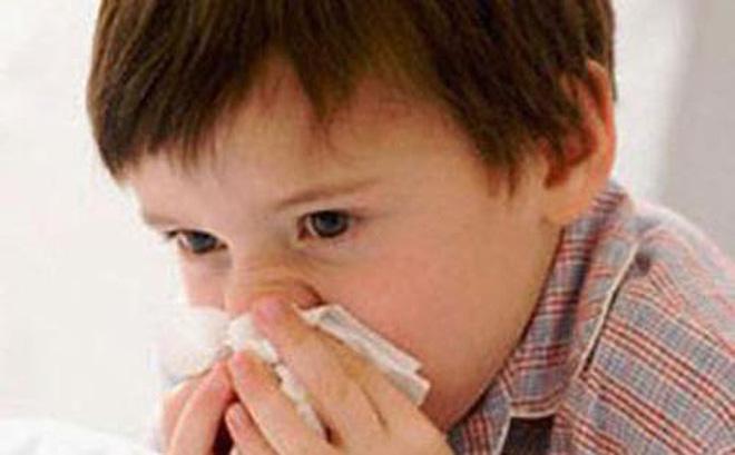 Bài thuốc chữa chảy máu cam ở trẻ em-1