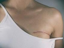 Cô gái 23 tuổi có 13 cục u vú vì thức đêm: mua ngay 7 thực phẩm để phòng ngừa