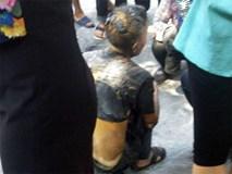 Cụ ông tưới xăng lên người rồi châm lửa tự thiêu giữ phố Hà Nội