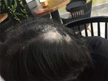 Mẹ chồng lên tiếng về nghi vấn đổ keo 502 lên đầu con dâu cũ