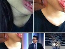 Nữ sinh tố anh rể BTV bạo hành: Chuyện Thùy D bị đánh nhóm bạn thân đã biết từ lâu