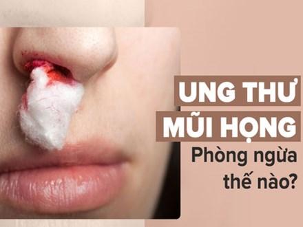 Đây là dấu hiệu sớm nhất của bệnh ung thư mũi họng: Cần nắm rõ để phòng bệnh kịp thời