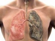 6 dấu hiệu không ngờ cảnh báo bệnh phổi đang tiến triển âm thầm bên trong cơ thể