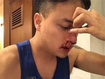 Fan lo lắng khi Cao Thái Sơn bị chảy máu mũi đến mức phải nhập viện