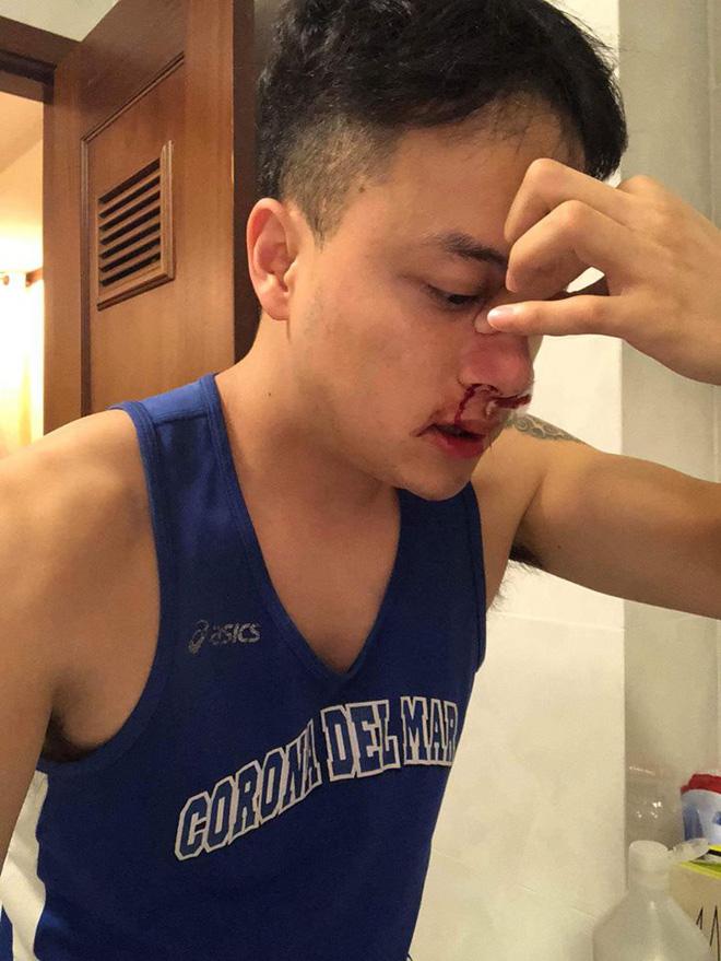Fan lo lắng khi Cao Thái Sơn bị chảy máu mũi đến mức phải nhập viện-1
