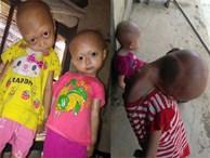 2 chị em gái mắc bệnh lạ khiến đầu, cổ bị nghẹo tựa 'người ngoài hành tinh' khiến ai nhìn cũng xót xa