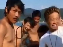 """Chàng trai bị cá ngoạm chặt """"của quý"""