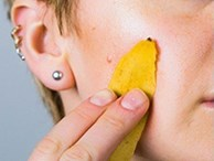 5 tác dụng 'ngạc nhiên chưa' của vỏ chuối, từ trị sẹo đến chống lão hóa khiến chị em phải mắt tròn mắt dẹt