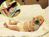 Đưa con sơ sinh đi cắt bao quy đầu, mẹ bàng hoàng khi thấy máu chảy không ngừng