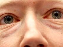Facebook sẽ theo dõi chuyển động mắt của bạn