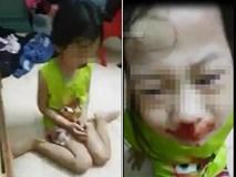 Nghi vấn mẹ đánh con gái chảy máu mũi rồi livestream gây phẫn nộ cộng đồng mạng