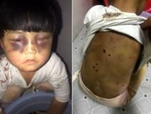 TQ: Bé gái 4 tuổi bị bố đánh bầm tím mắt, lưng bị dí tàn thuốc lá, xích trong nhà vệ sinh