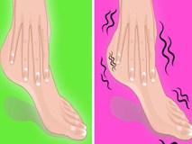 Nhìn ngay xuống bàn chân soi dấu hiệu bệnh tật