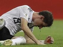 Sao tuyển Đức dính trọn giày đinh ngay mặt, máu chảy thành dòng
