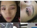 Nhìn những hình ảnh kinh hoàng này, chị em có cân nhắc lại về quyết định cắt mí mắt không?-13