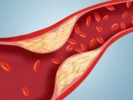 'Công thức vàng' làm sạch mạch máu, giảm mỡ máu: Bài thuốc nên có trong mọi gia đình