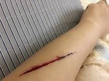 Sự thật vụ cô gái bị 2 thanh niên rạch tay cướp túi xách ở đường Láng
