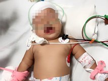 Kinh hoàng bé gái 14 tháng tuổi bị khỉ nhà hàng xóm cắn rách đầu, lún sọ