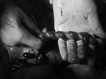 """Nhìn dây rốn thai nhi khi mổ đẻ, bác sĩ thảng thốt: """"Sao bé có thể nghịch tới mức này?"""""""