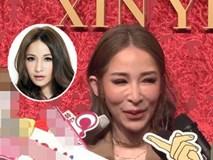 Mỹ nhân Đài Loan gây sốc vì gương mặt biến dạng