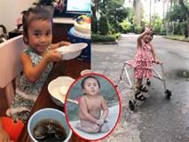 Sau hơn nửa năm về nhà mới, cô bé Mường Lát tật nguyền đã có thể tự đi trên đôi chân mình, thay da đổi thịt ngỡ ngàng